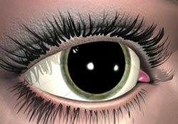 Picture of Dilated Eye